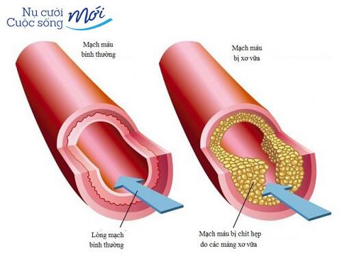 Xơ vữa động mạch nên ăn gì là Tốt – Hiệu Quả – An Toàn Nhất?