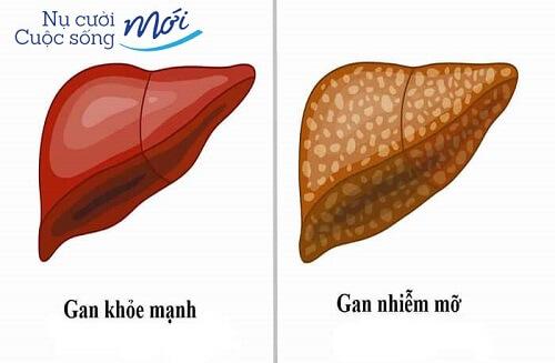 Gan nhiễm mỡ nên ăn gì? Điều trị như thế nào là Tốt Nhất?