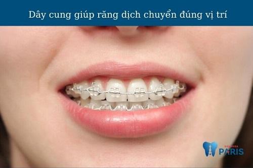 Dây cung niềng răng có mấy loại? Có tác dụng gì? Bị tuột phải làm sao?