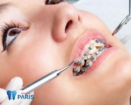 Tháo niềng răng trước thời hạn có được không?
