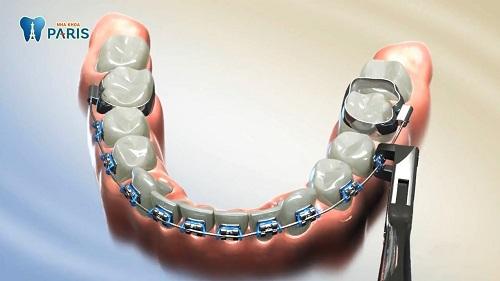 Tháo niềng răng như thế nào? Có đau không? Tháo sớm có sao ko?