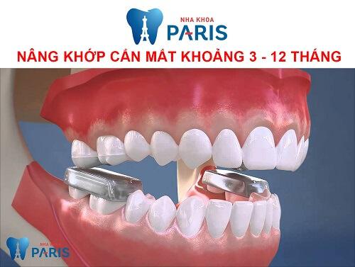 Nâng khớp cắn trong niềng răng là gì? Có tác dụng gì? Nâng bao lâu?
