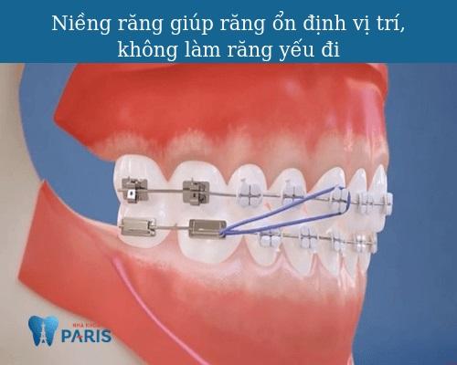 Niềng răng có làm răng yếu đi không? [Chuyên gia giải đáp]