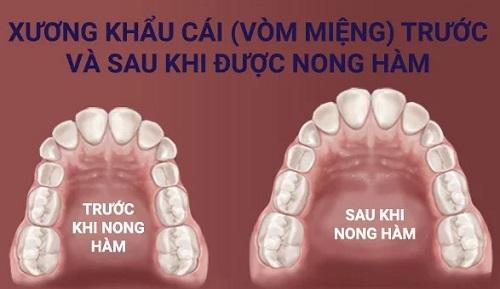 nong hàm khi niềng răng