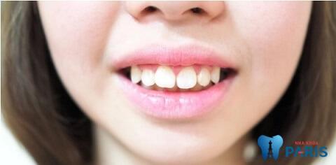 Niềng răng xong vẫn xấu do đâu? Khắc phục như thế nào?