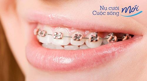 Niềng răng 1 hàm thôi có được không? Giá bao nhiêu tiền?
