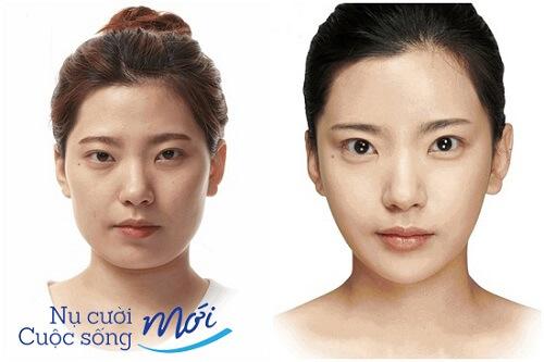 Có nên phẫu thuật khuôn mặt trái xoan không?