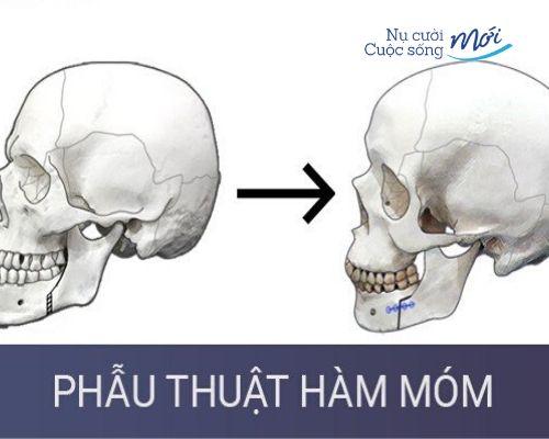 mặt lưỡi cày như thế nào? Khắc phục
