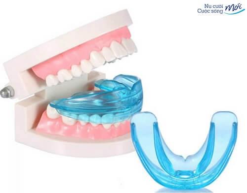 niềng răng trainer có tốt không