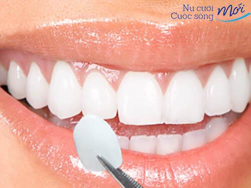 Chỉnh sửa hàm răng