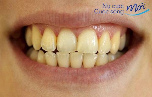 Tướng hàm răng ố vàng