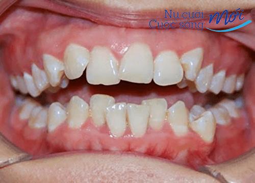 Tướng hàm răng quỷ