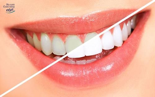 Răng sau khi tẩy trắng