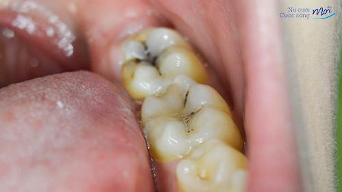 Tổng hợp các bệnh về răng miệng thường gặp nhất hiện nay