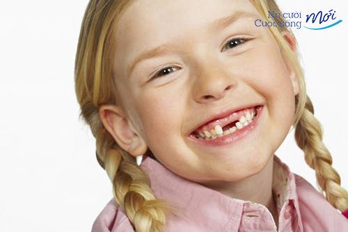 Cười sún răng